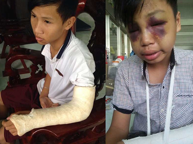 Công an xã dùng gậy đánh chết học sinh 15 tuổi