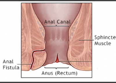 Anal fistula treatment New Delhi