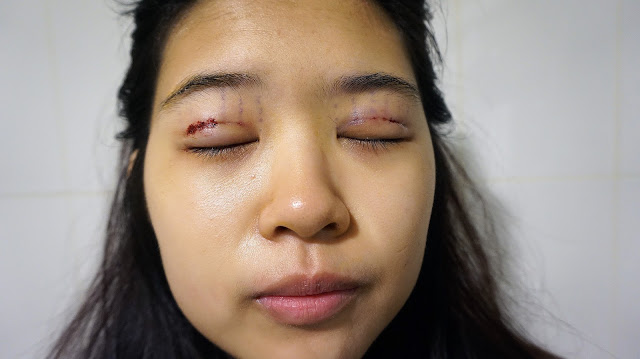 My double eyelid stitching - osmyuki