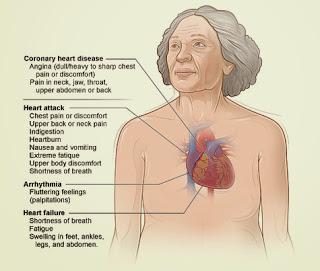 gejala dari penyakit jantung koroner