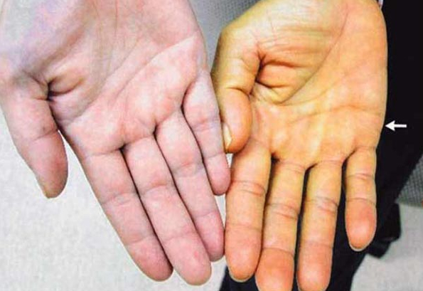 Liver Diseases Symptoms