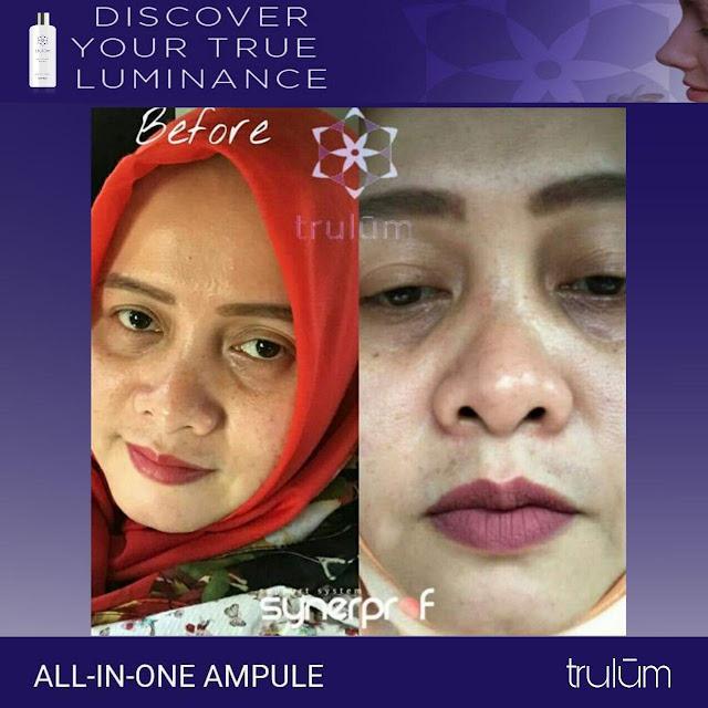 Jual Serum Penghilang Jerawat Trulum Skincare Benakat Muara Enim