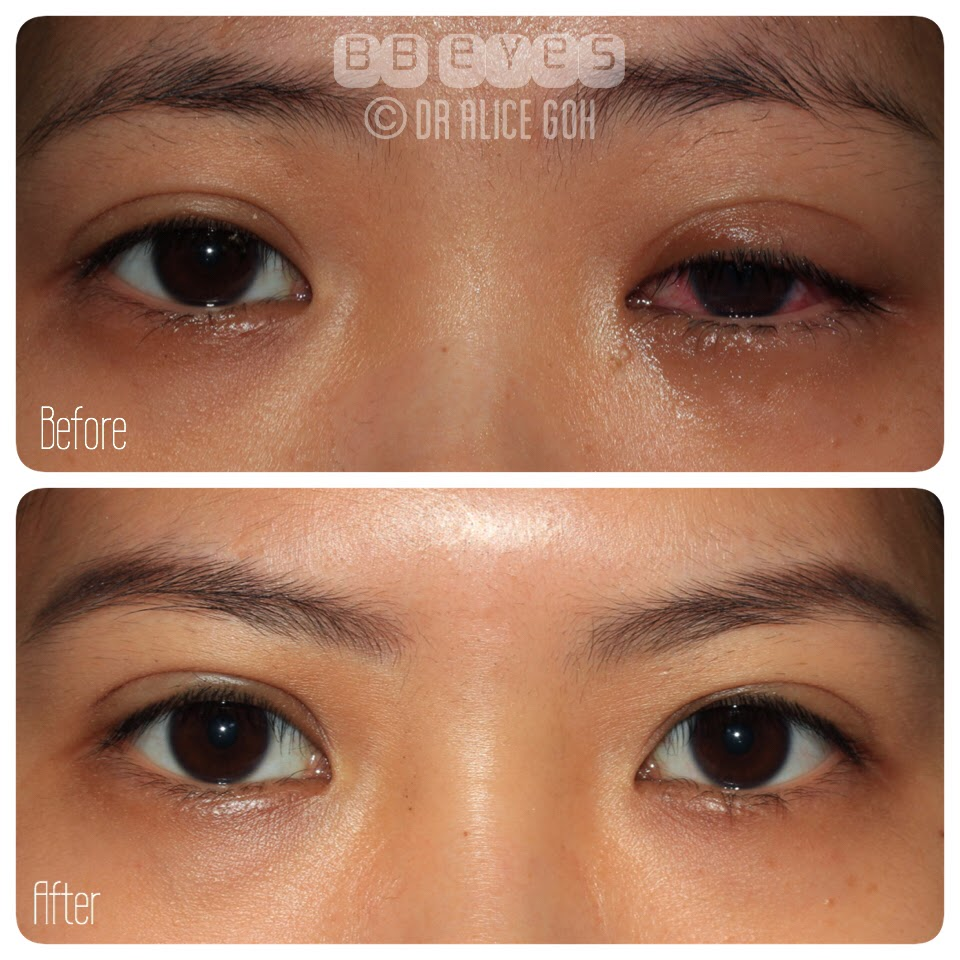 Dr. Alice Goh: What Can Happen If Double Eyelid Procedure