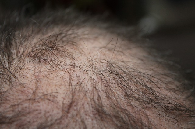 Hair Loss - why Does Amphetamines Cause Hair Loss
