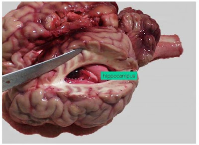 Ammon horn, dalam incisi permukaan dorsal otak