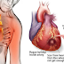 HOW TO STOP A HEART ATTACK IN JUST 60 SECONDS – IT'S VERY POPULAR INGREDIENT IN YOUR KITCHEN