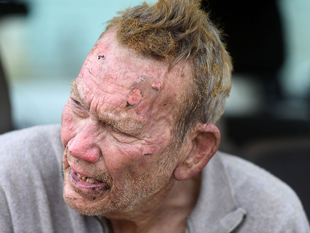 This man burned his face in the process of rescuing dogs from his burning animal shelter.