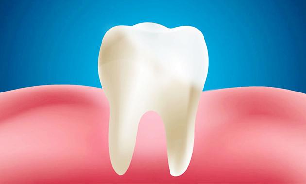 10 Cara Merawat Gigi dan Gusi Sehari-Hari dengan Bahan Alami