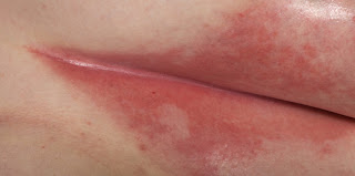 Intertrigo rashes appear in the skin folds pictures