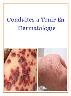 Conduites a Tenir En Dermatologie WWW