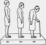 Obat Osteoporosis untuk Wanita