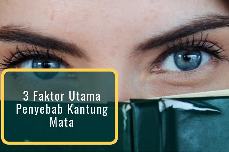 3 Faktor Utama Penyebab Kantung Mata