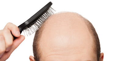 Side Effects of Hair Loss