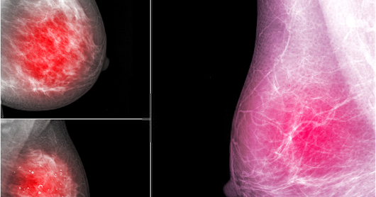 Breast cancer: symptoms, therapy and chances of recovery of breast cancer