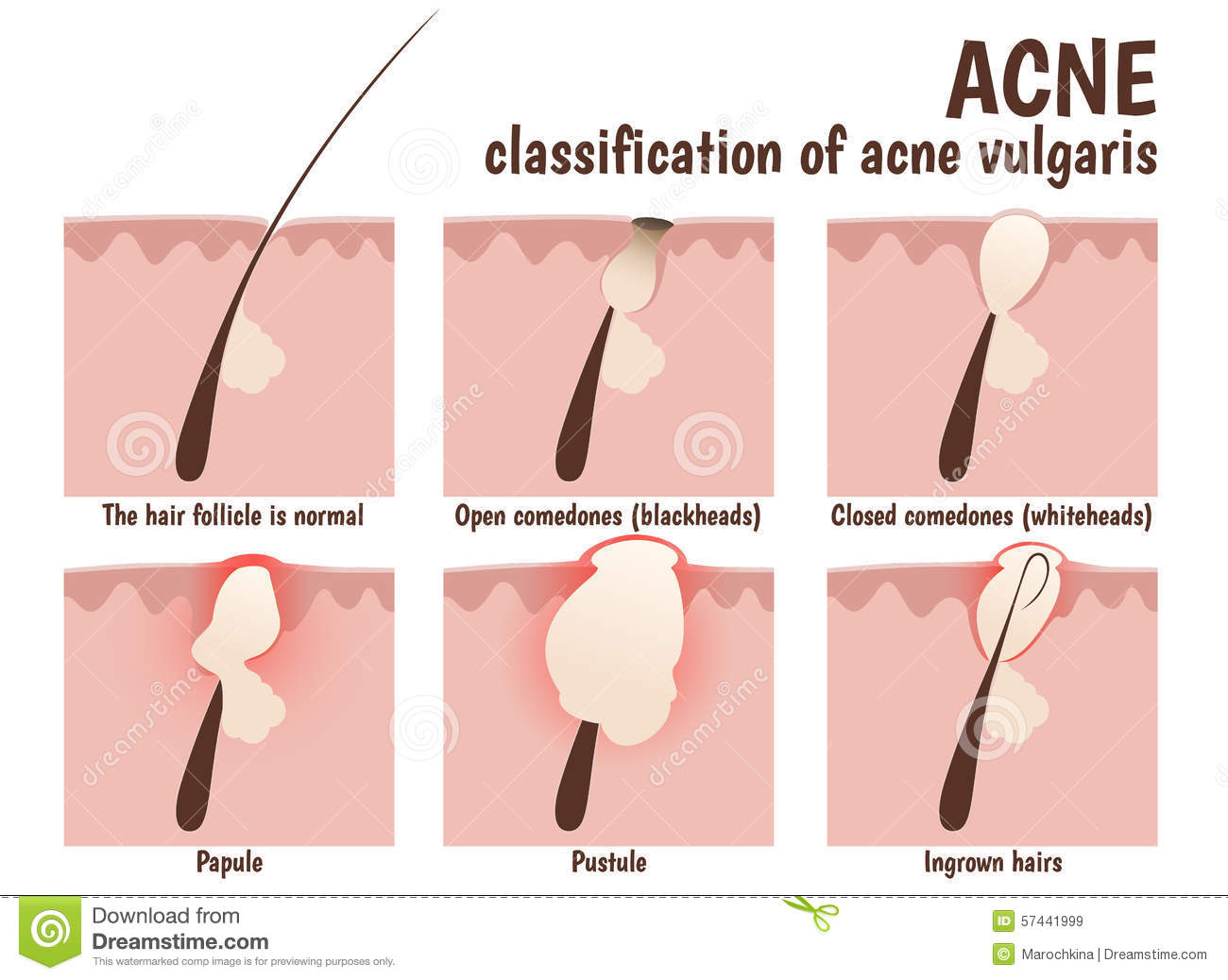What Causes Acne Diagram John Deere Wiring L100 Treatment Home Remedies