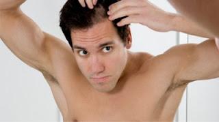 saç neden dökülür, erkeklerde saç dökülmesi