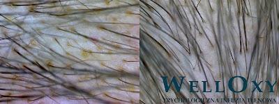 welloxy infuzja tlenowa zabiegi na włosy