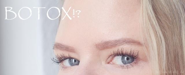 Botox in der Stirn - ja oder nein - Erfahrungsbericht