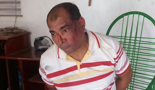 Homem mata mãe e filha a golpes de marreta em Codó