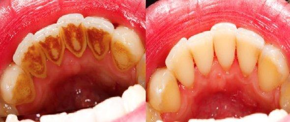 Acest remediu poate albi dintii extreme de ingalbeniti, reusind sa inlature tartrul si placa dentara