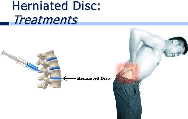 singapore paincare center: what is herniated disc and how to cure it?, Human Body