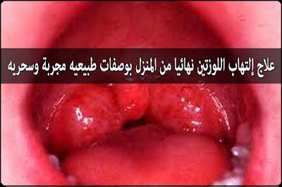 وصفات طبيعيه لعلاج التهاب اللوزتين عند الكبار والصغار