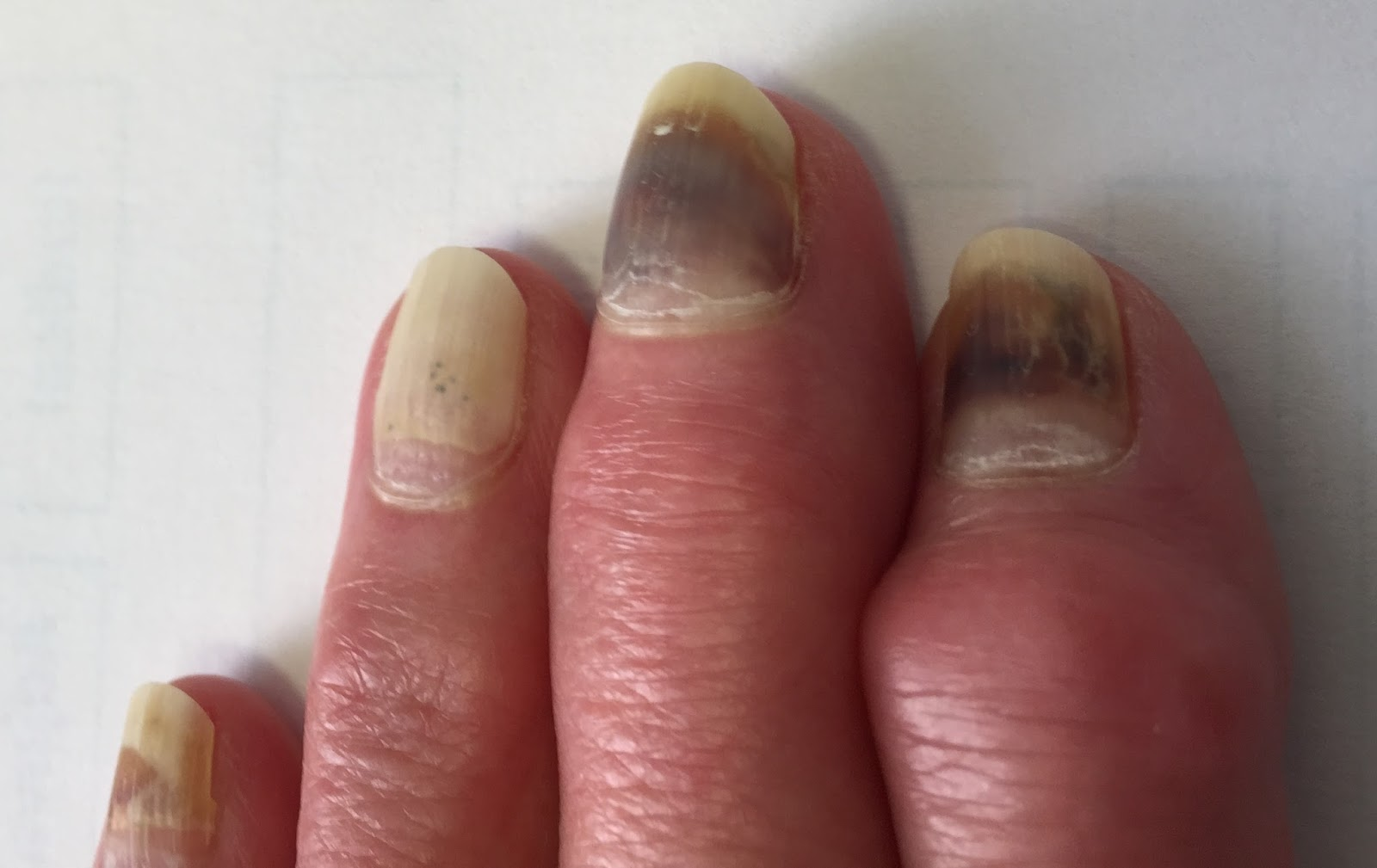 chemotherapy and nail toxicity Rationale: cryotherapy may help prevent peripheral neuropathy or nail toxicity in patients receiving chemotherapy purpose: this clinical trial studies.