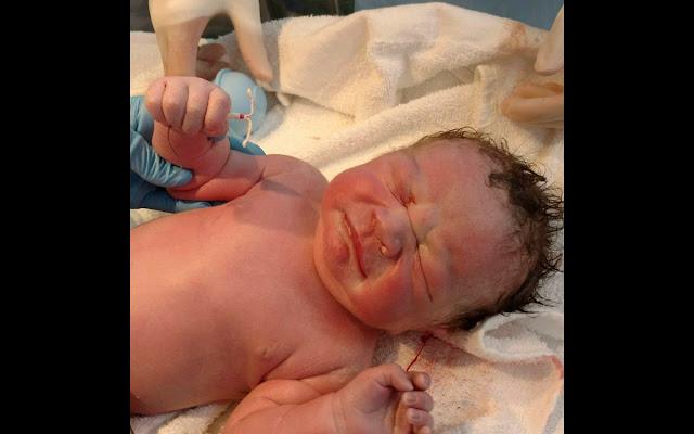 bebelus care s-a nascut cu steriletul in mana