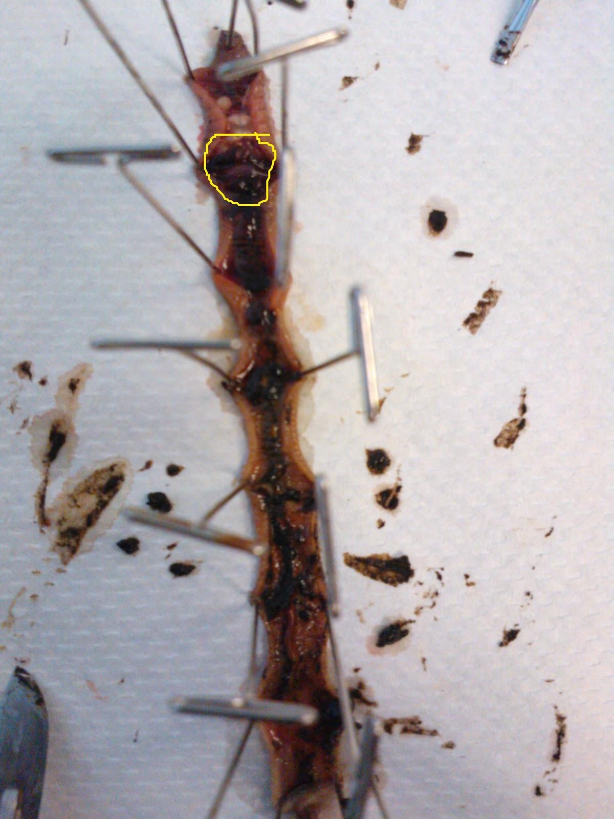 Bio11 Earthworm Dissection Lab