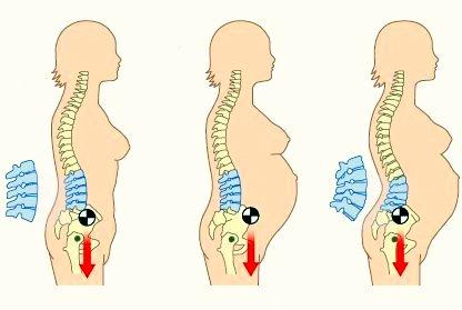 El planteamiento de las sanguijuelas a la hernia sheynogo del departamento de la columna vertebral