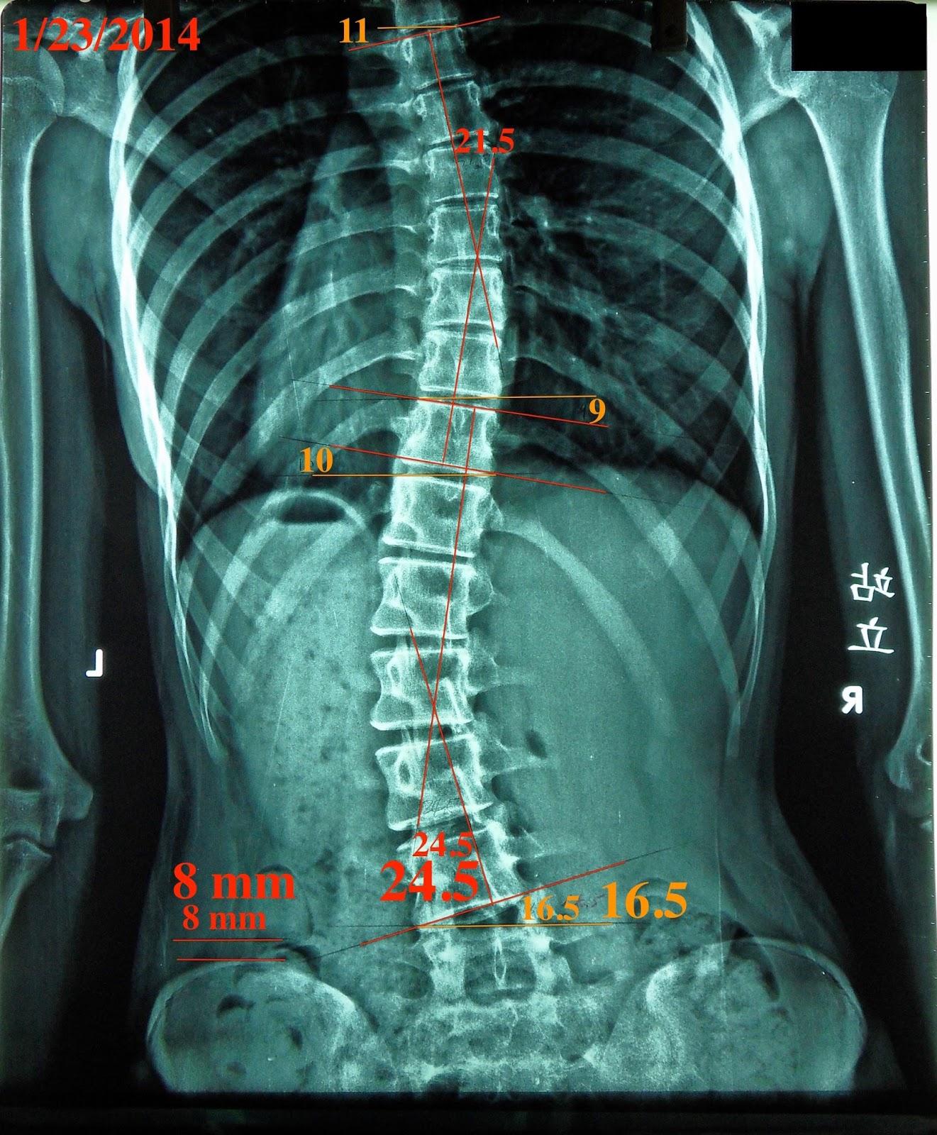 脊椎側彎, 脊椎側彎背架, 脊椎度數,脊椎側彎矯正, 脊椎側彎治療, schroth運動, schroth脊椎側彎, 德國Schroth