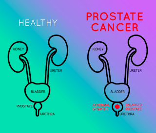 https://www.siiut.com/prostate-cancer-treatment/