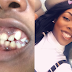 Photo ; There is hope for EYINNACHO,  US-based Nigerian lady with deformed teeth shows off the incredible transformation after dental surgery