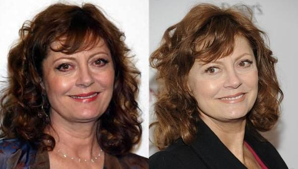 Susan Sarandon Before And After Plastic Surgery ...