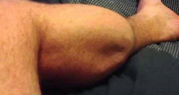 exista trucuri si remedii simple prin care poti vindeca rapid carceii picioarelor