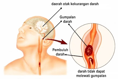 Cara Mengatasi Penyumbatan Pembuluh Darah Di Otak Secara Alami