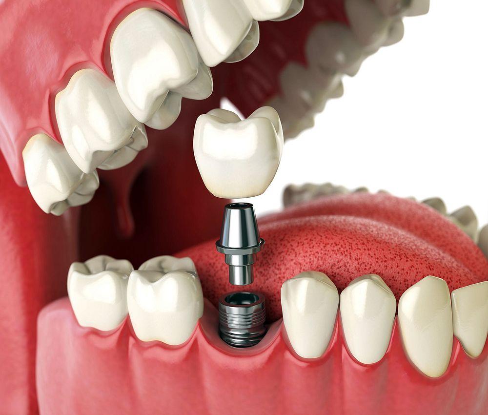 IMPLANTODONTIA : Implante Dentário - É doloroso?