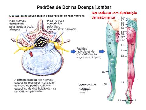 padrões de dor na doença lombar
