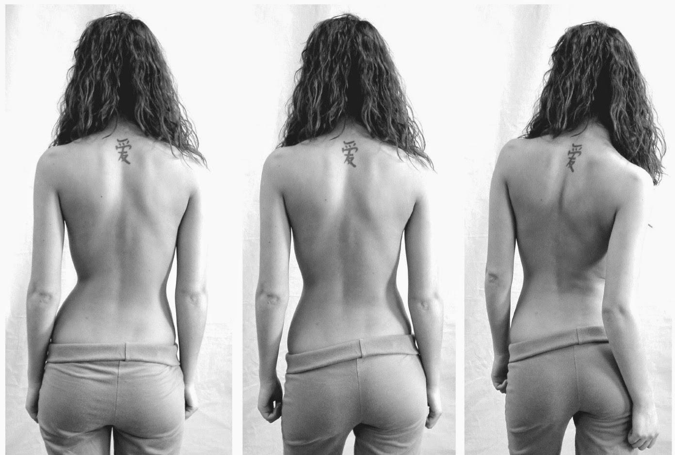脊椎側彎, 脊椎側彎背架, 脊椎度數,脊椎側彎矯正, 脊椎側彎治療, schroth運動, schroth脊椎側彎, 德國Schroth, 施羅特運動, 脊椎側彎矯正運動