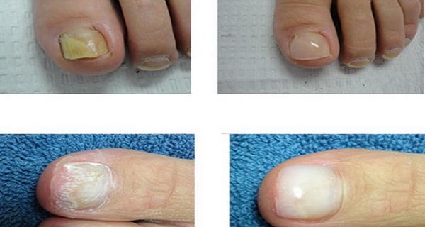 tratament infectii la unghiile picioarelor