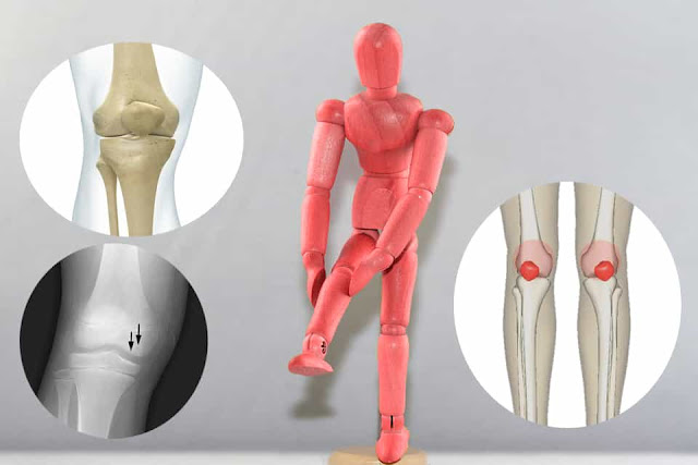 Why you should consult an expert for a tormenting knee pain?