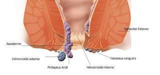علاج البواسير بالبابونج وشمع العسل