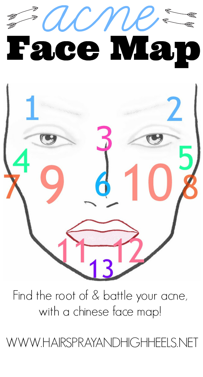 acne face mapping
