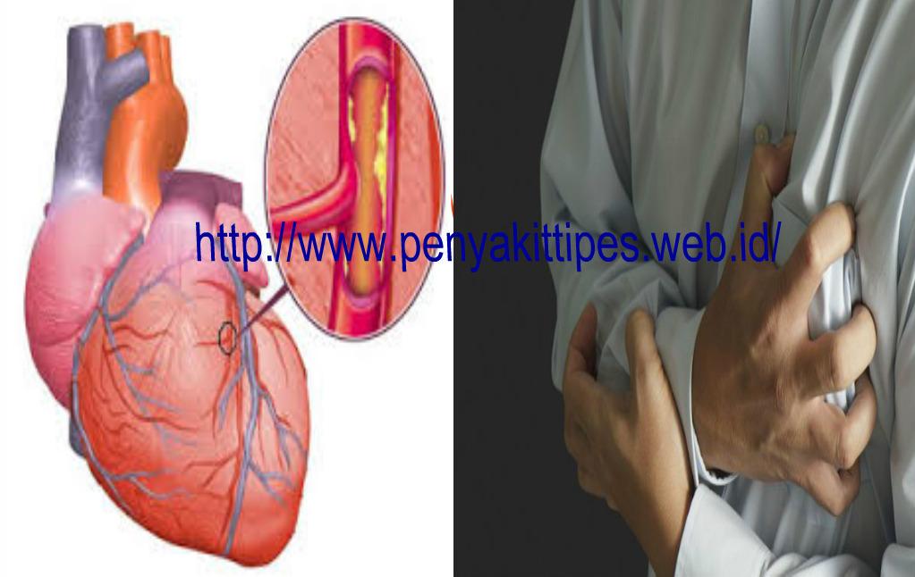 Pengobatan Tradisional Penyakit Jantung Rematik