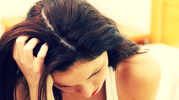 Cara Mengatasi Ketombe Akut dan Membandel Di Kepala dengan Cepat