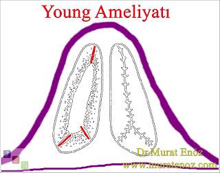 Young Cerrahisi - Young Operasyonu - Young Ameliyatı - Young Prosedürü - Young's Operation - Young's Surgery - The Young's Procedure - Boş Burun Sendromu - Hatalı burun eti ameliyatı - Modifiye Young Cerrahisi - Modifiye Young Operasyonu - Modifiye Young Ameliyatı - Modifiye Young Prosedürü - Modified Young's Operation - Modified Young's Surgery - The Modified Young's Procedure - Herediter hemorajik telenjiektazi (HHT) - Rinitis sicca anterior – Ozaena - Sekonder kronik atrofik rinit - Primer kronik atrofik rinit - Boş burun sendromu - Merciful anosmia - Atrofik rinit tedavisi - Atrofik rinit medikal tedavisi - Atrofik rinit cerrahi tedavisi - Atrophic rhinitis -  Atrophic rhinitis treatment -  Young's Surgery İstanbul -  Young's Surgery Turkey