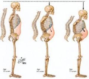 Cara Mengobati Keropos Tulang