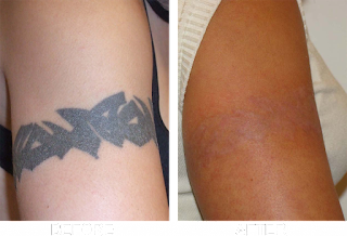 http://www.skinsolutionz.in/laser-treatment.html