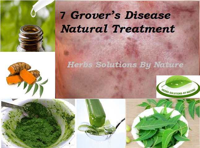 7 Natural Treatments For Grover S Disease