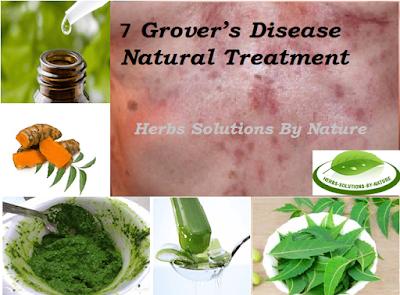 Grover's Disease